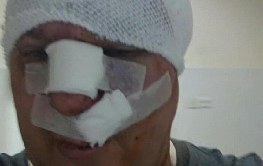В Киеве избили известного догхантера (фото)