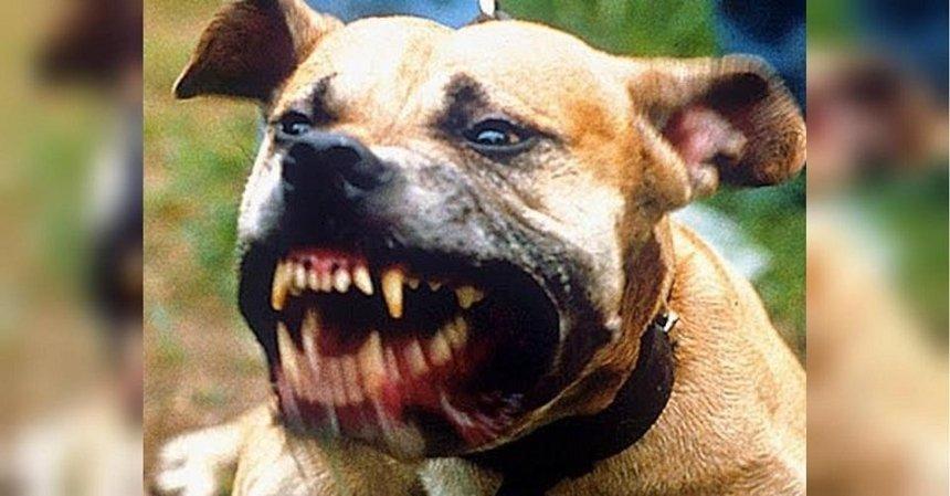 Под Киевом на двух женщин напали собаки бойцовских пород