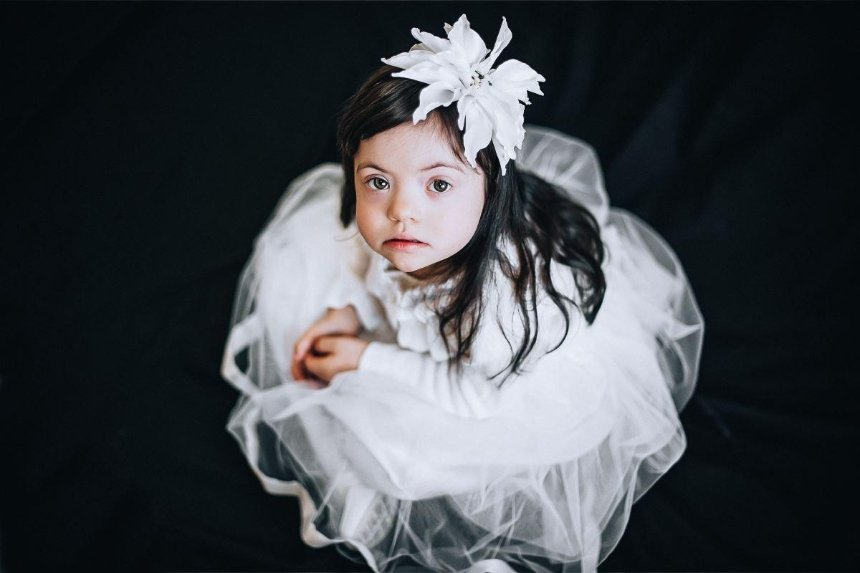 Дети солнца: фотопроект о людях с синдромом Дауна