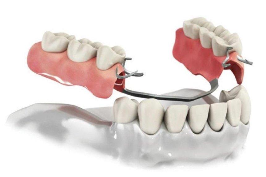 Протезирование зубов – от съемных протезов до имплантатов