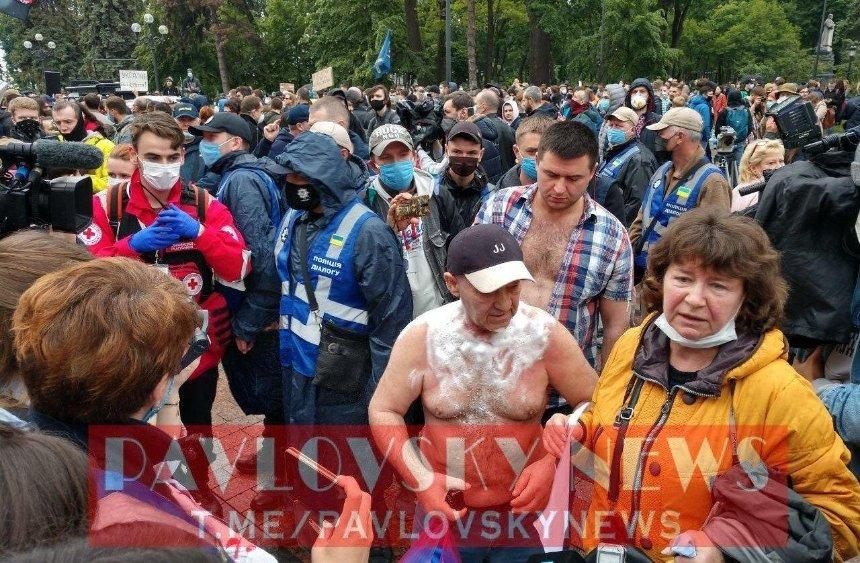 Мужчина попытался поджечь себя во время митинга под Радой